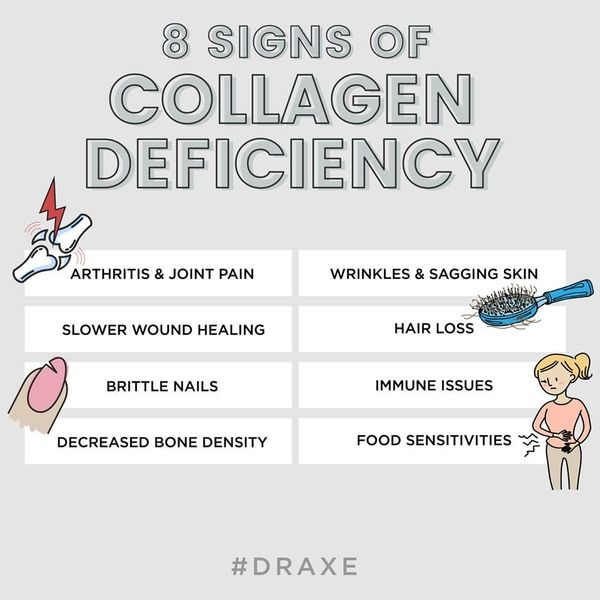 signs of collagen deficiency.jpg